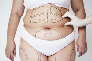 """Liposuction Surgery"""