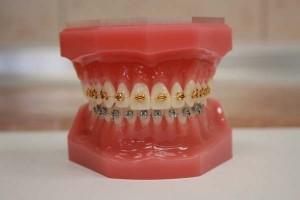"""Dental braces"""