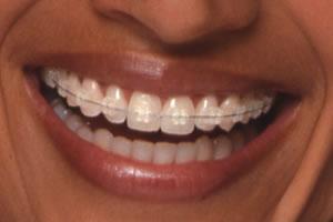 """invisible braces"""