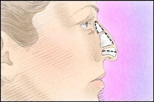 """nose surgery"""