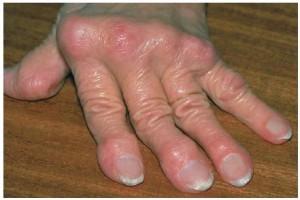 """""""rheumatoid arthritis"""""""