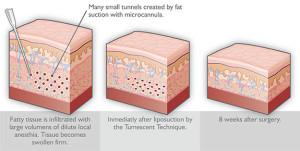 tumescent-liposuction