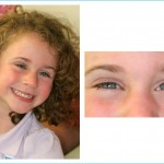 Prosthetic Eyes – Helping You In Hard Times