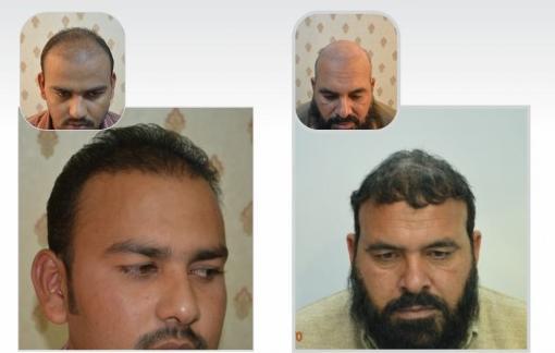 Fue hair transplant clinic Lahore Pakistan `