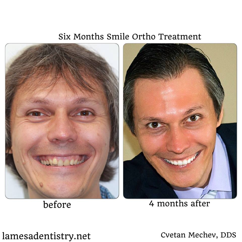 la mesa dentist six month smiles