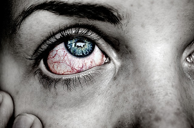 redness of eye