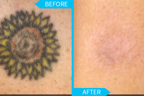 tattoo removal at Surgical Dermatology