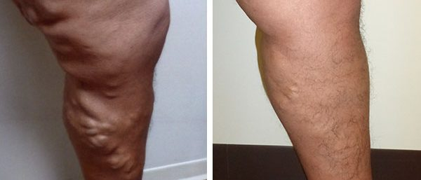 varicose veins - before and after at Clínica de Terapia Vascular