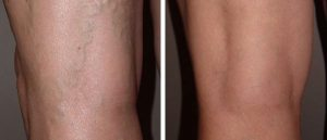 before and after ClosureFast at Clinica de Terapia Vascular
